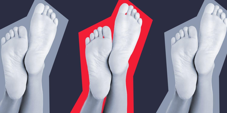 Soles of feet